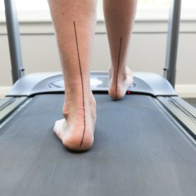 gait analysis in Geelong