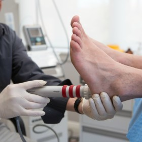 shockwave therapy for plantar fasciitis, Geelong