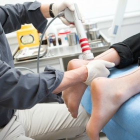 Geelong shockwave therapy for achilles