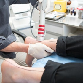 radial shockwave therapy Geelong