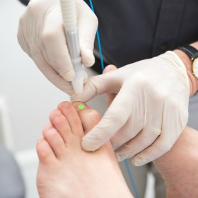 laser treatment for toenail fungus in Geelong