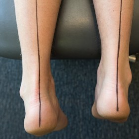 Geelong sports podiatrist assessments